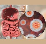 Hepatitis A and its Treatment