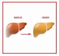 Understanding NASH and NAFLD: How do you differentiate?