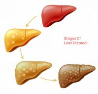What are the stages of liver disease ?