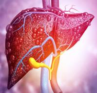 Managing NAFLD in Obese Individuals