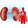 I have CKD and hypertension - Can pain killers worsen my condition? Image